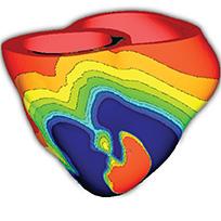 SSIMA_modelare computationala a unui model cardiac