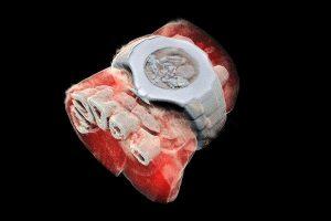 3-D Scanner color cu raze X – provenit din cercetările de la CERN – ar putea contribui la detectarea bolilor letale, fără vreo intervenție chirurgicală